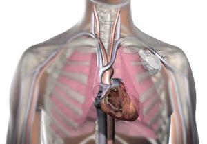 ход электродов и положение кардиостимулятора в организме.