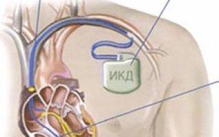 Что такое кардиовертер-дефибриллятор (ИКД)?