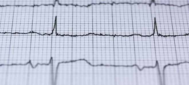 Можно ли делать ЭКГ при кардиостимуляторе.