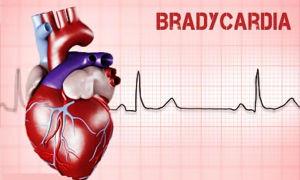 Что такое брадикардия?