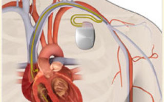 Операция имплантация кардиовертера-дефибриллятора