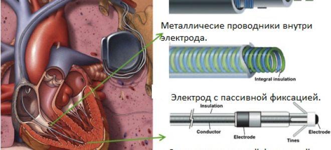 Установка электродов кардиостимулятора.