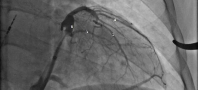Анатомия вен сердца в левой косой проекции.