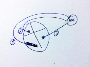 Трехкамерный ИКД