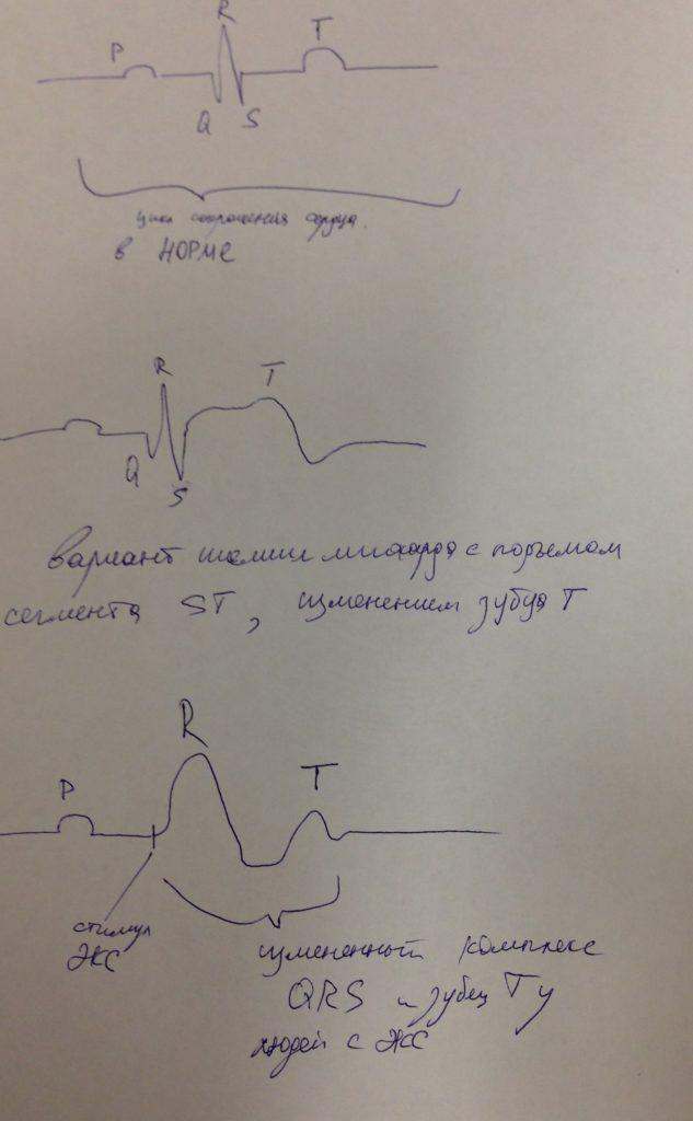 Изменение комплекса QRS у людей с кардиостимулятором.