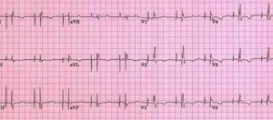 ЭКГ при кардиостимуляторе - двухкамерная стимуляция