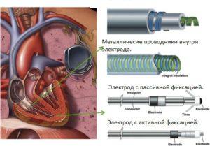 Электрод для кардиостимулятора