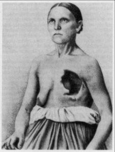 Серафин - пациентка Циммсена